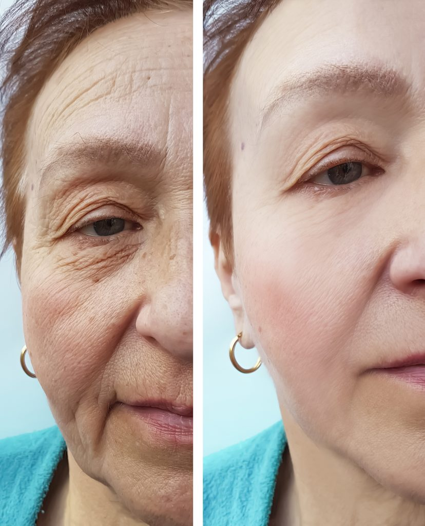 radiofrequency face lift in luton